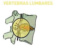 La hernia de disco en vértebras lumbares