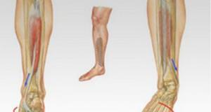 La periostitis (I): Síntomas y causas