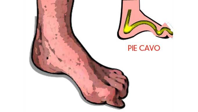 ¿Qué es un pie cavo?
